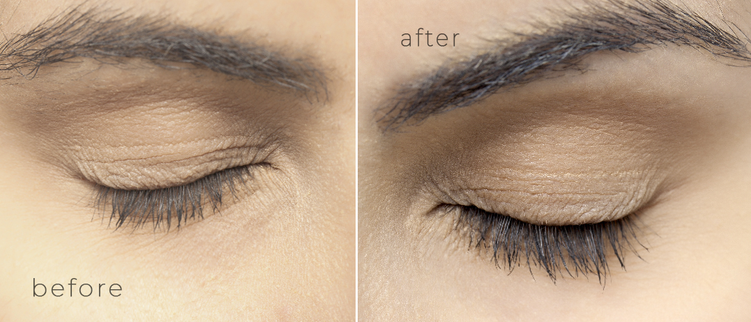 Nanolash eyelash serum before and after